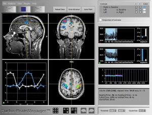 avl3 300x228 Controlling An Avatar With Your Brain? Israeli Lab Is Trying