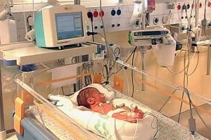 Baby 300x199 New Device: Quick Detection Of Respiratory Problems In Premature Infants