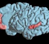 Brain Speech - Health News - Israel