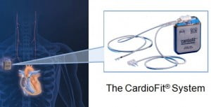CardioFit Gets On Your Nerves To Save Your Heart