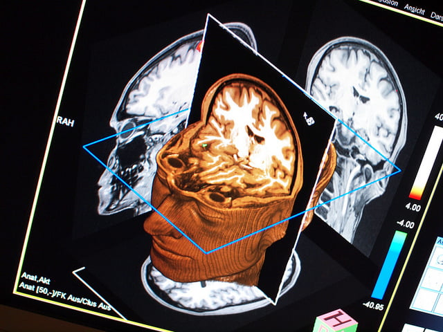 Health News: Israeli Researchers Track Emotional Trauma In The Brain