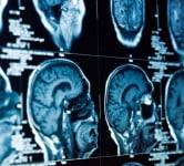 Health News: Research: Oxygen-Rich Air Can Cure Damaged Brain Cells