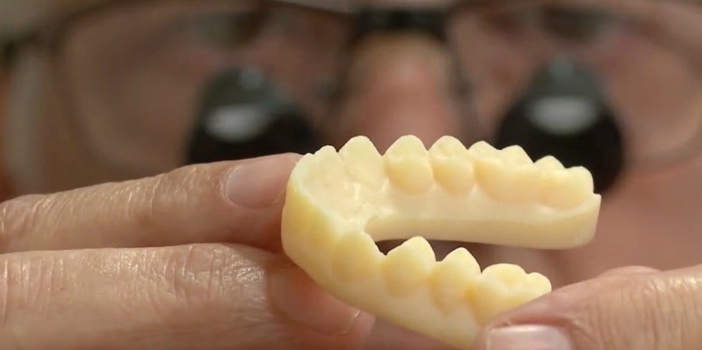 Technology News - 3D Printers' Next Stop: Your Mouth
