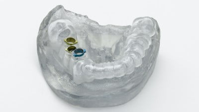 Health News: 3D Printing Tech Can Solve A Lot Of Problems For Orthodontists