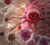 'Treatment-Resistant' Tumors Might Be Treatable After All