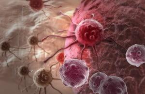 Cancer Cells via Bigstock