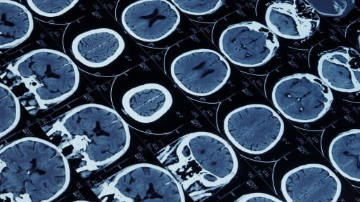 Health News: Study: Common Drug Could Prevent Injury-Related Epilepsy