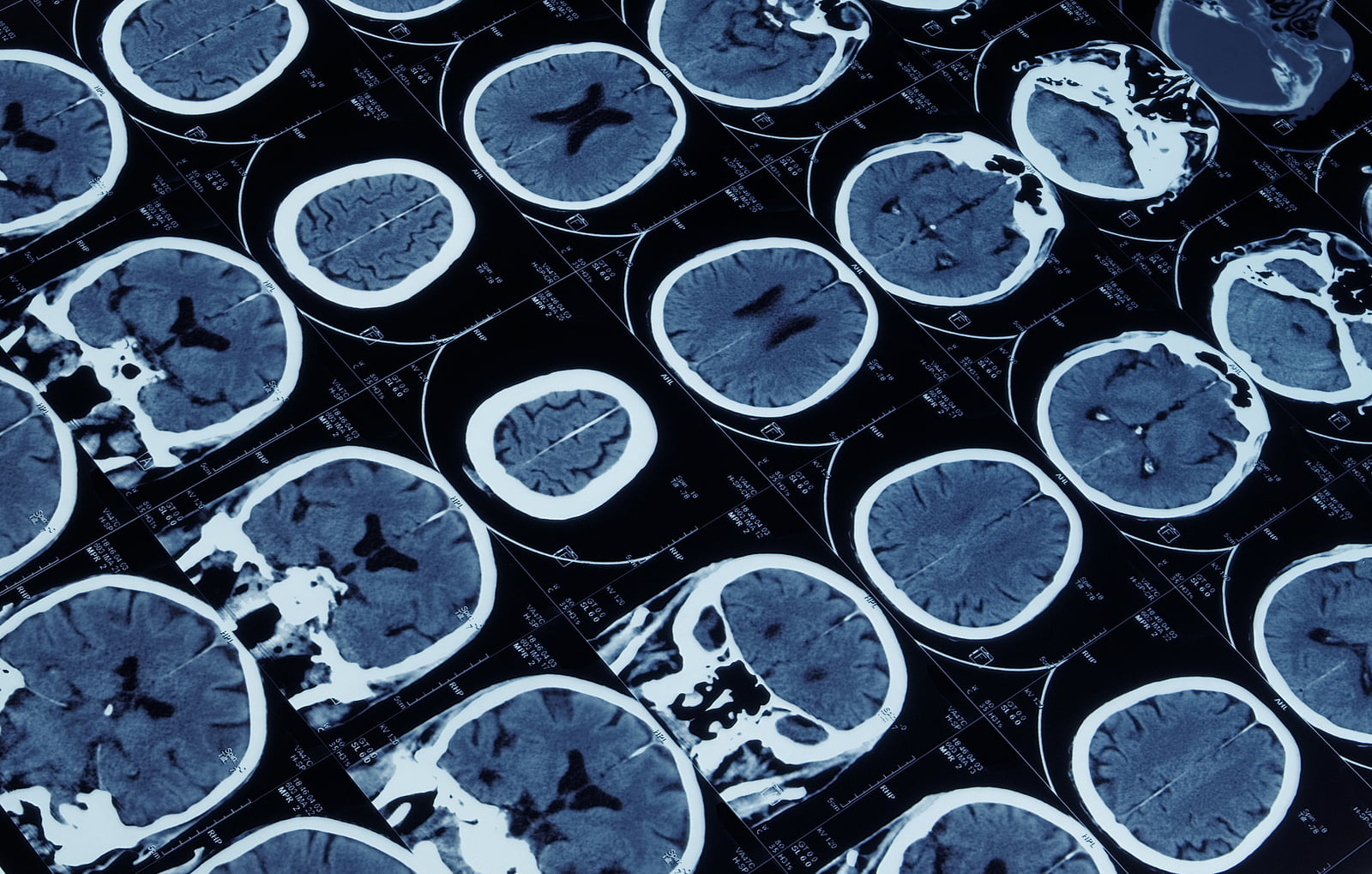 Study: Common Drug Could Prevent Injury-Related Epilepsy