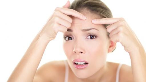 Acne spot pimple spot skincare beauty care girl pressing on skin