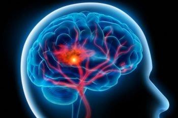 BrainsWay's Brain, Courtesy
