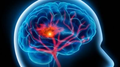 brainsway brain