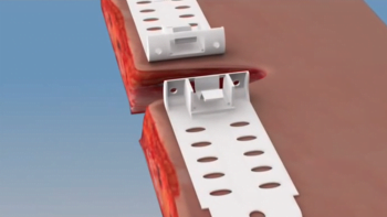 A screenshot from a promotional video demonstrating how TopClosure works.