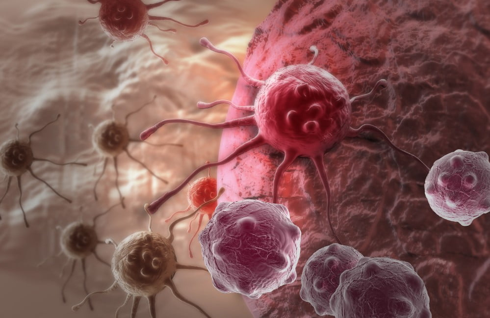 Cancer Cell via BigStock