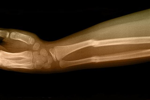 bonefracture