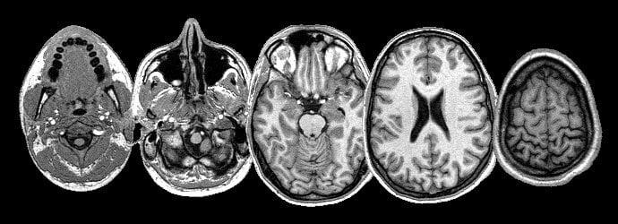 MRI Head via DashBot