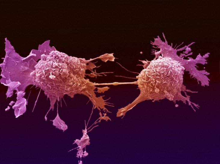 Lung cancer cell dividing. The two daughter cells are only held together by a very thin bridge of cytoplasm. Scanning electron micrograph. Photo by Wellcome Images