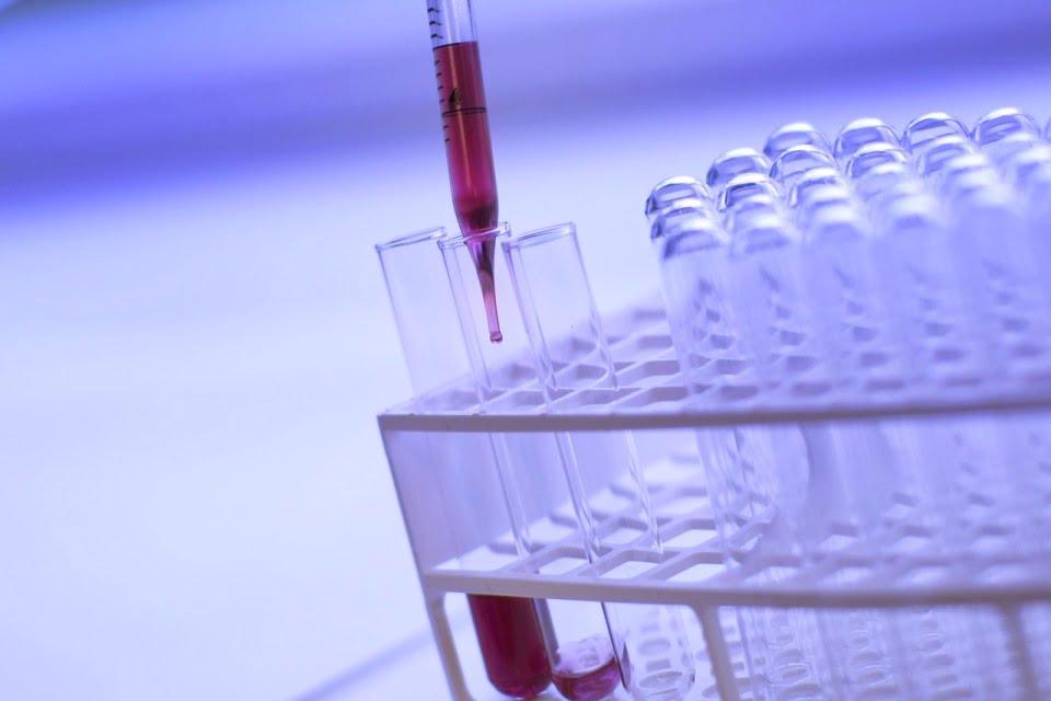 Test Tubes Blood Lab via Pixabay