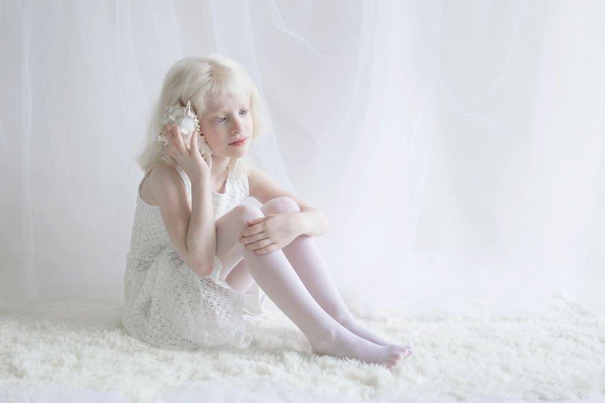 Albino, Albinism, girl, Yulia Tates