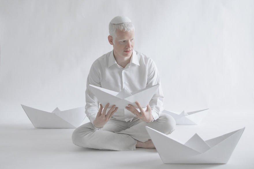 Albino man, Albino