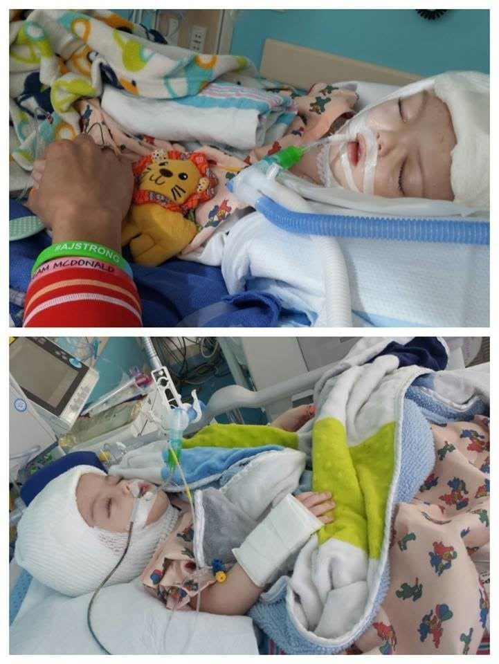 http://www.prnewswire.com/news-releases/twin-boys-conjoined-at-head-successfully-separated-at-childrens-hospital-at-montefiore-after-more-than-20-hours-of-surgery-300349057.html