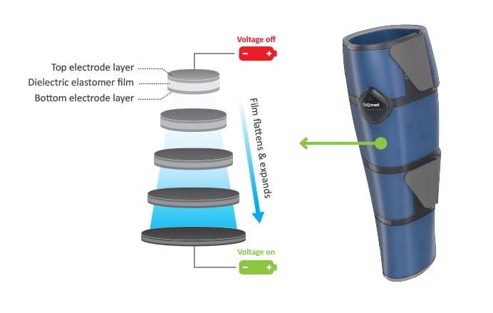 Elastimed technology. Photo via Elastimed.com