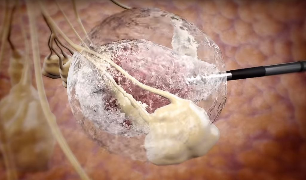 A screenshot from an IceCure video showing its cryoablation technology.