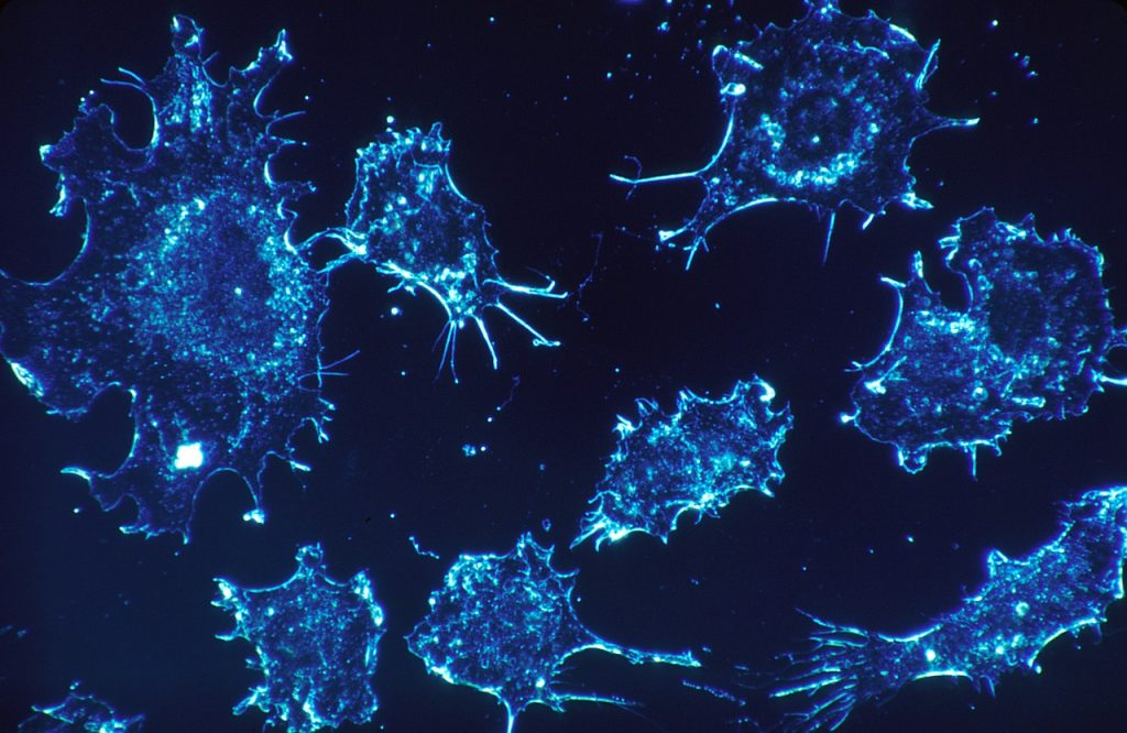 Cancer cells in an electron microscope scan. Courtesy of Pixabay