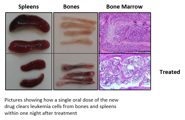 Leukemia cancer cells before and after treatment. Credit: Waleed Minzel/Hebrew University.
