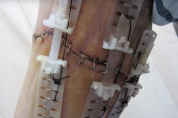 The TopClosure device on a patient's arm. Screenshot