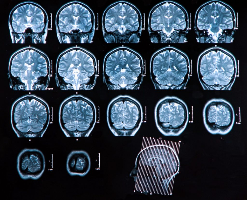 An MRI scan of the human brain.