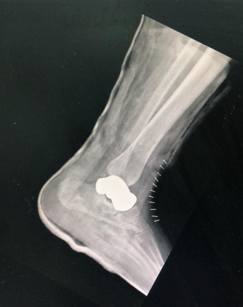 An X-ray showing the 3D-printed ankle bone implant at Beilison Hospital. Courtesy