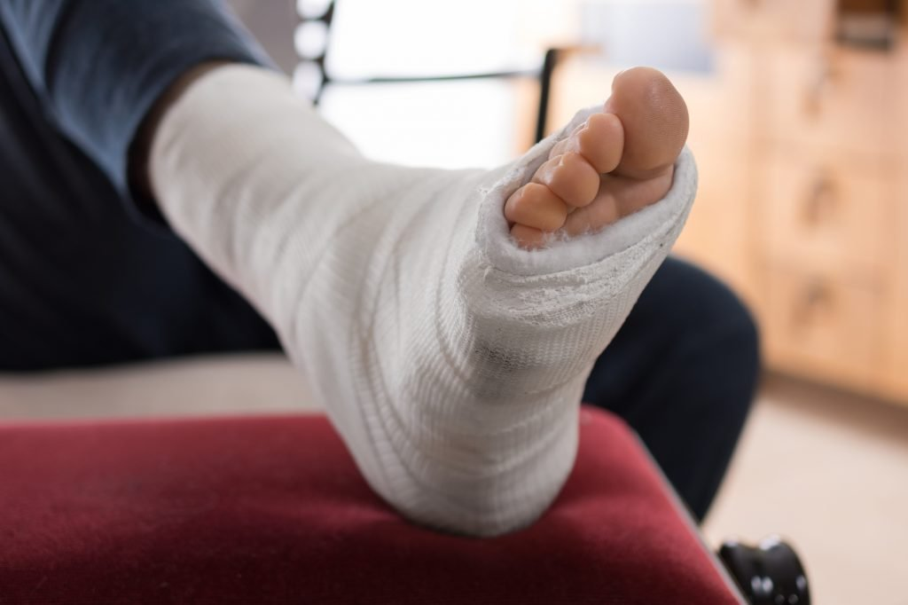 An illustrative photo of an ankle injury. Deposit Photos